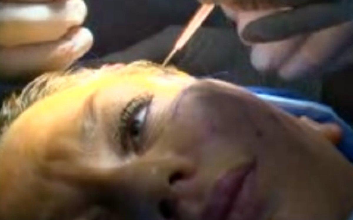 Miniinvazivní operace obličeje - Silhouette Lift