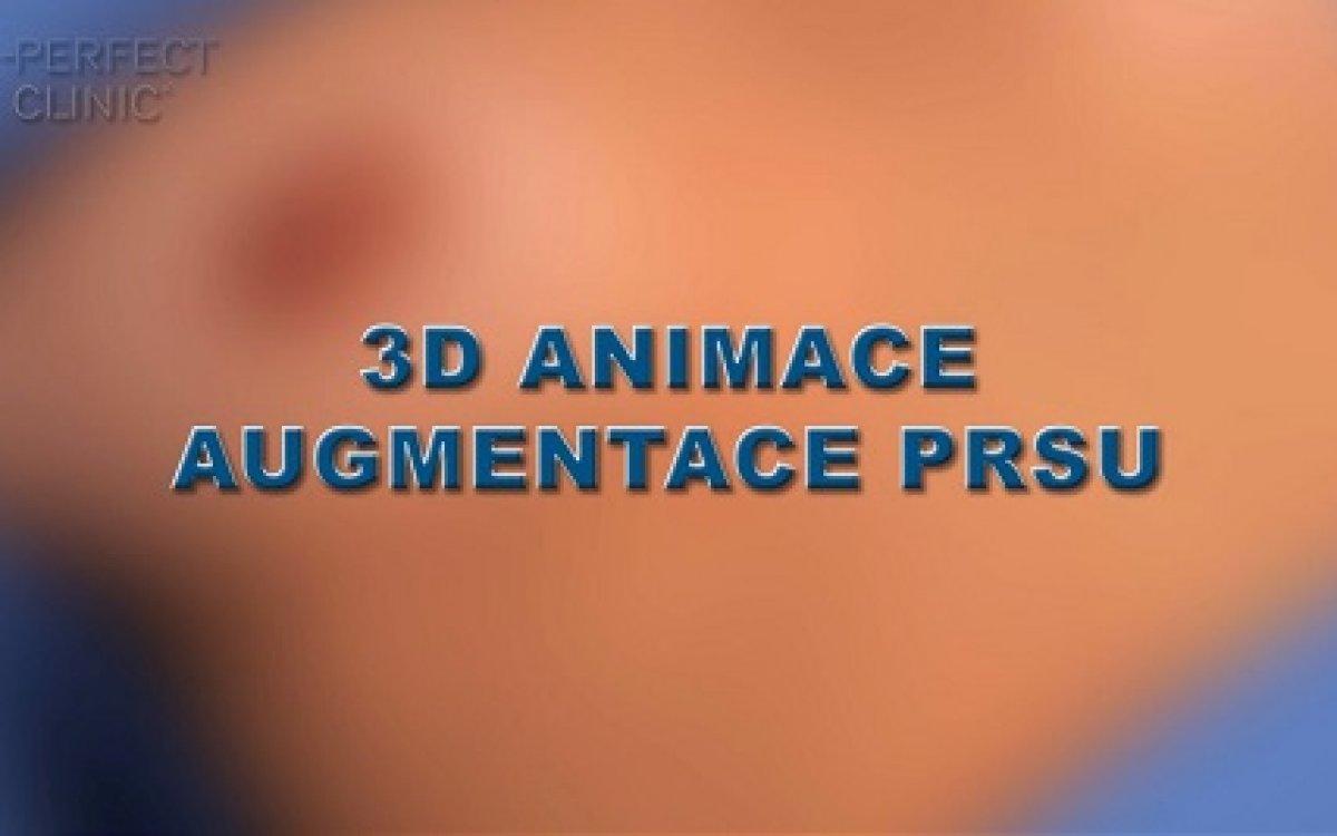 3D animace zvětšení prsou - step by step