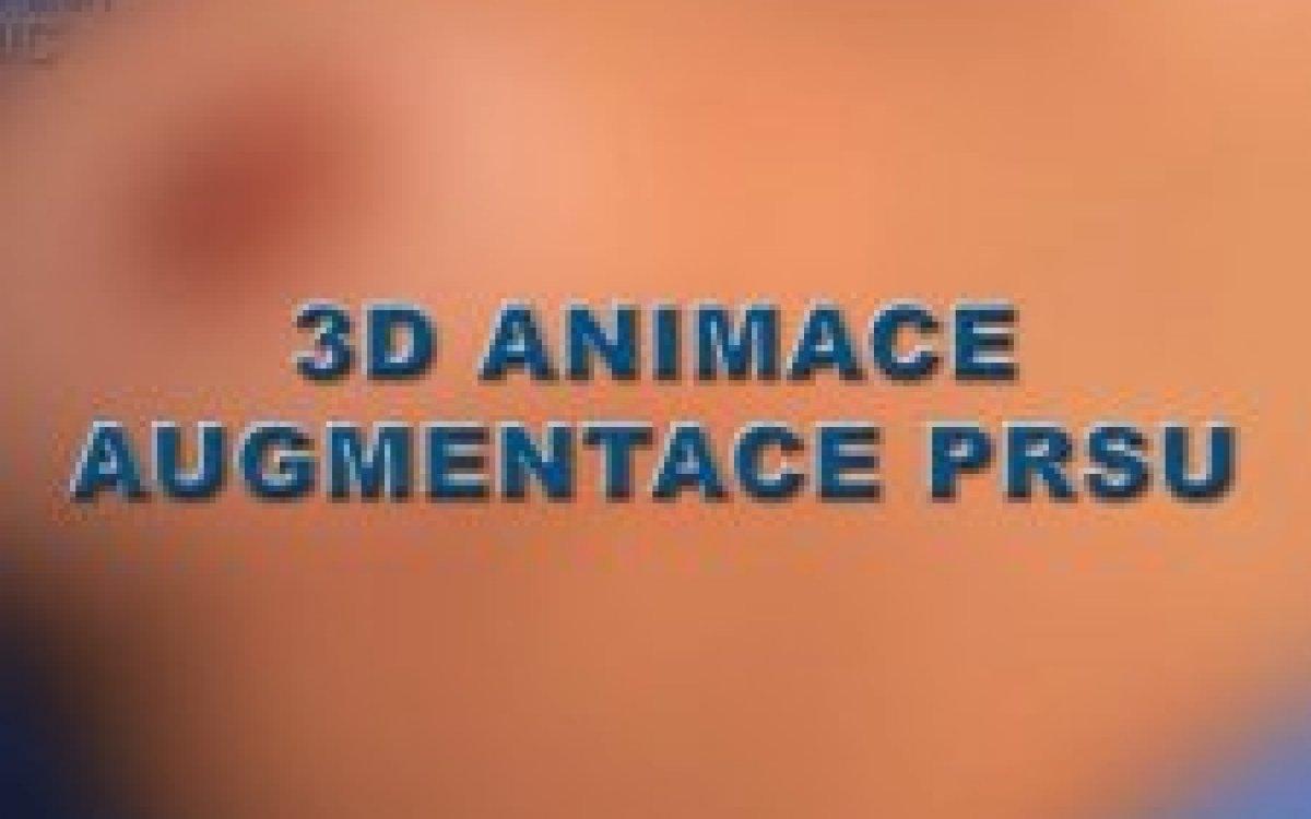 Brustvergrößerung 3D Animation