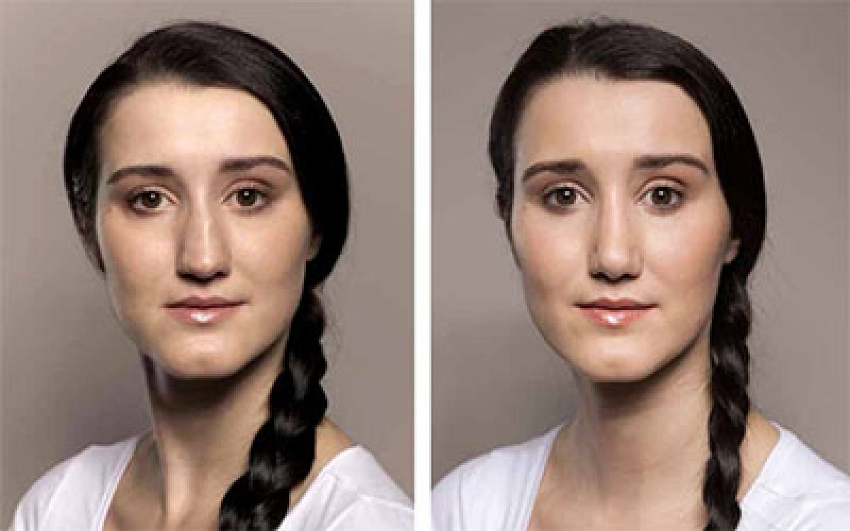 Plastika nosu je delikátní operace