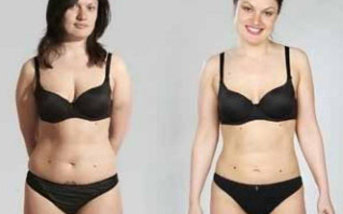 Liposukce ženy vs. muži