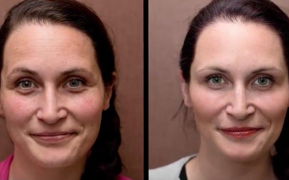 Plasmatherapie und Augenringe