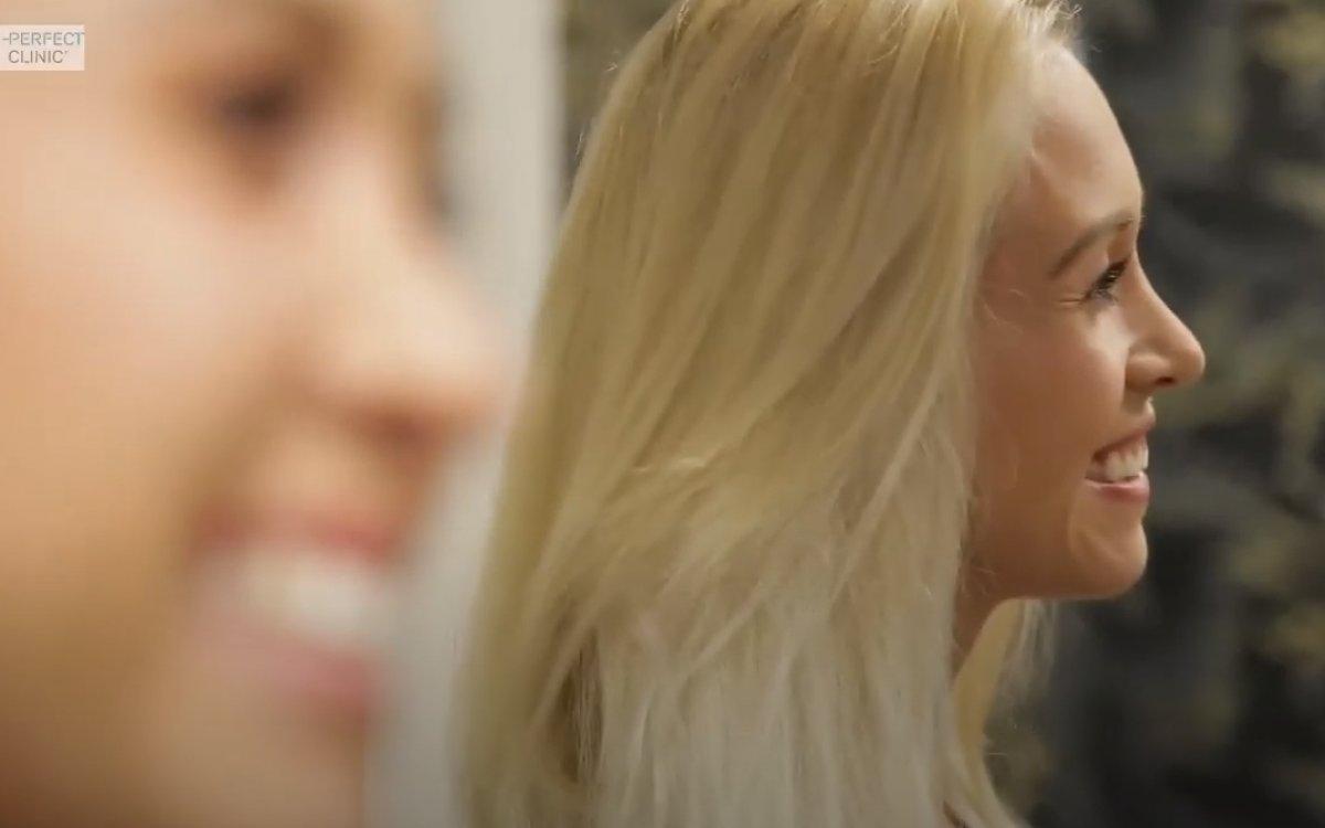 Nové video: Otevřená rhinoplastika