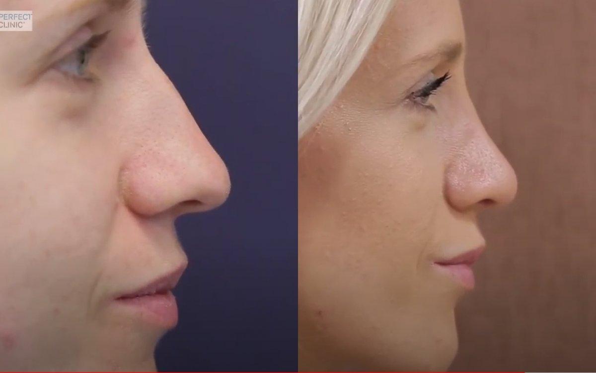 Nové video: Otevřená metoda operace nosu