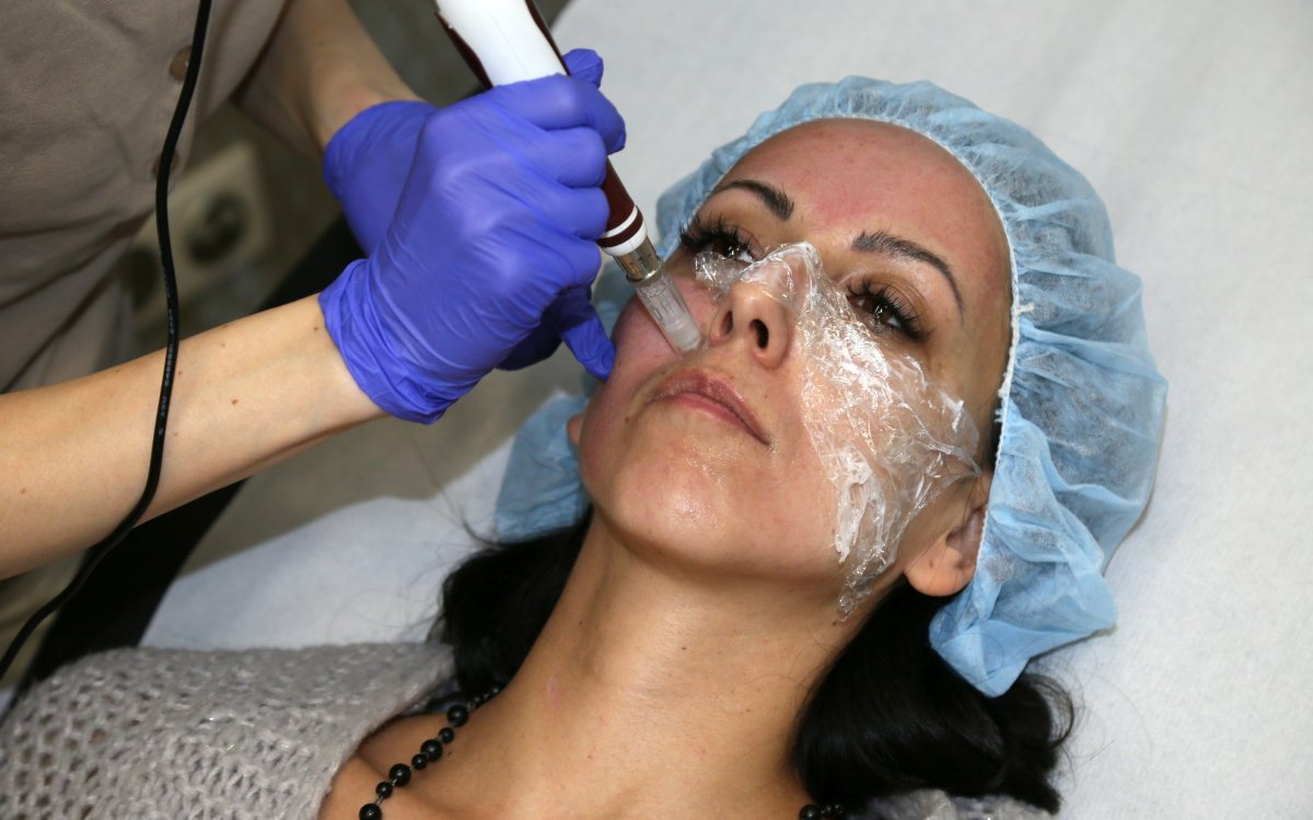 Medical microneedling: O trošičku krásy navíc