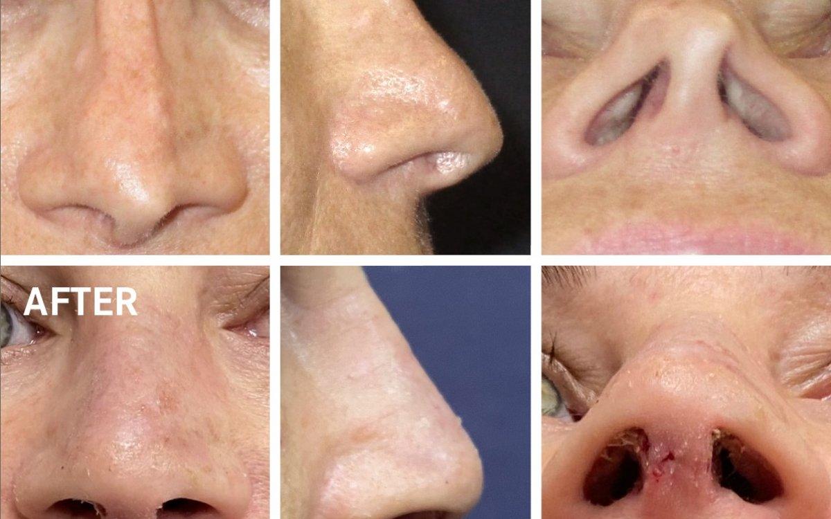SekundäreRhinoplastik - Dr. med. Roman Kufa
